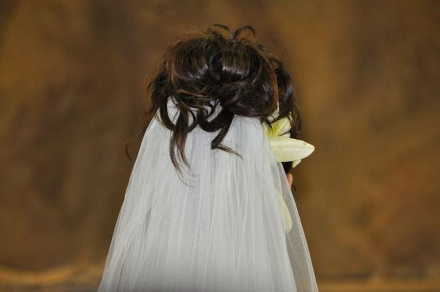 Consejos para combatir la caspa el día de tu boda