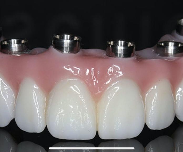Prótesis: Tratamientos de Clínica Dental Dr. Javier de Lorenzo-Cáceres Cullen
