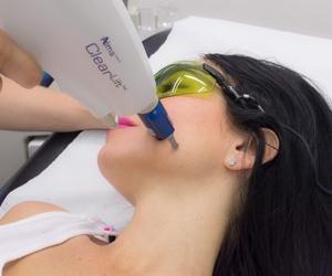 Cirugía dermatológica y láser