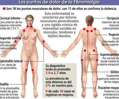 La fibromialgia afecta sobre todo a mujeres entre 40 y 49 años