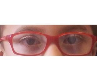 Optometría infantil y clínica