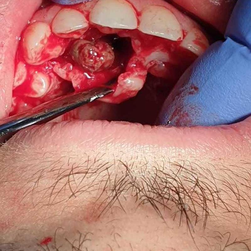 Proceso quirúrgico extracción de quiste dermoide