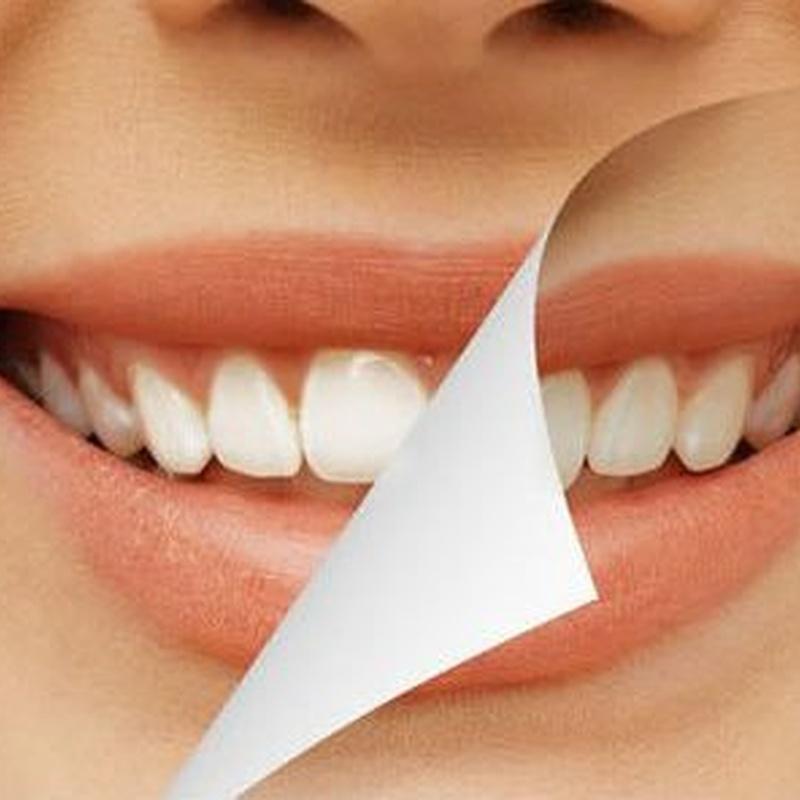 Estética Dental: Tratamientos de Moncloa Clínica Dental