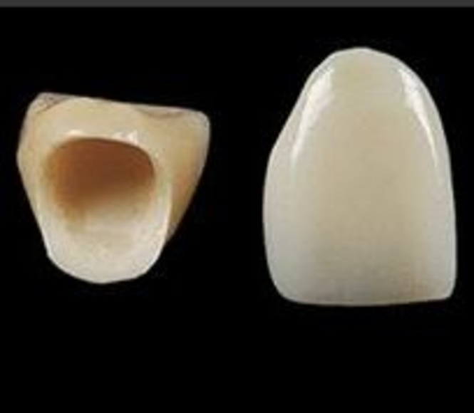PORCELANA: ESPECIALIDADES de Clínica Dental Morey }}