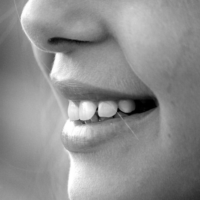 Vuelve a sonreír sin complejos