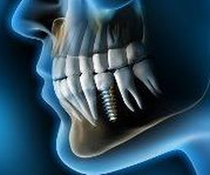 implantes dentales en canillas, implantes dentales en hortaleza, dentistas en canillas, dentistas en hortaleza, clínicas dentales en hortaleza, clínicas dentales en canillas,implantes en hortaleza, implantes en canillas.