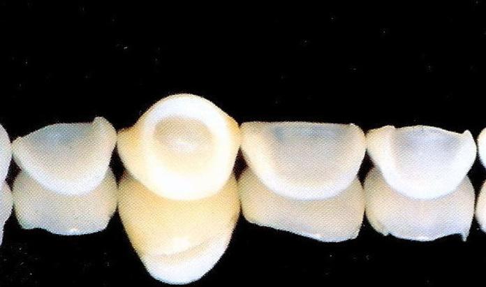Carillas: Tratamientos dentales de Clínica Dental Flores