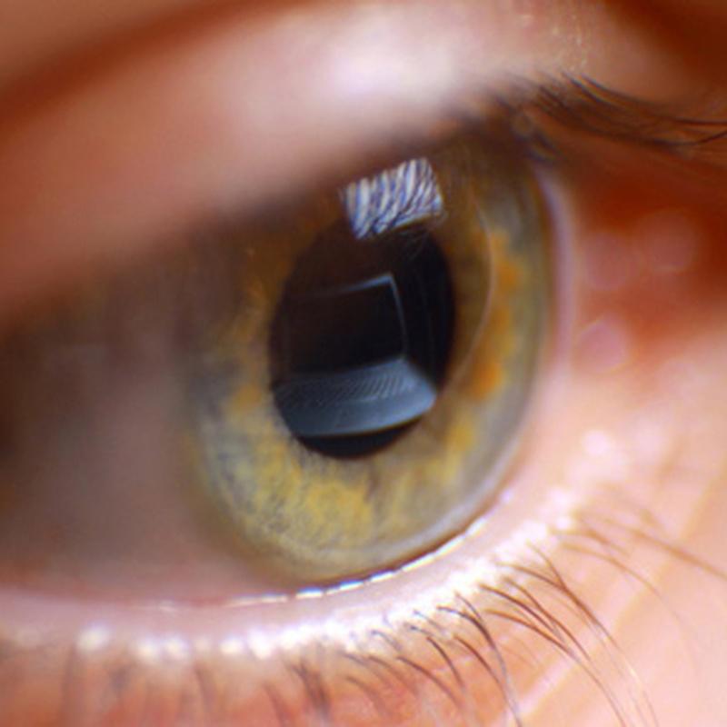 Lentes rígidas: Catálogo de Opticalia Gálvez