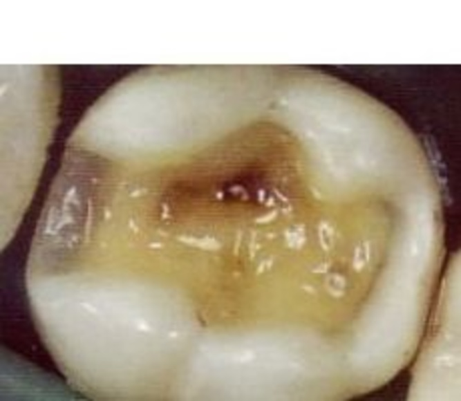 Empastes : Servicios   de Clínica Dental Dr. Javier Pérez Martínez