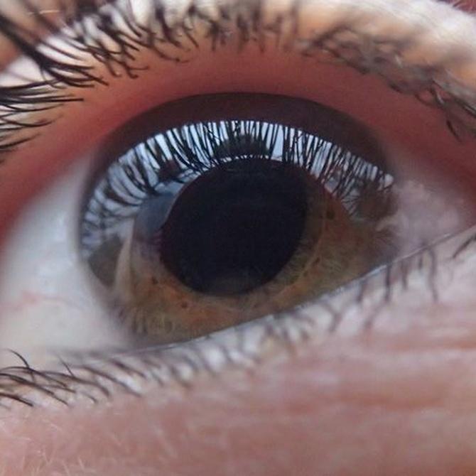 ¿En qué consiste el astigmatismo?