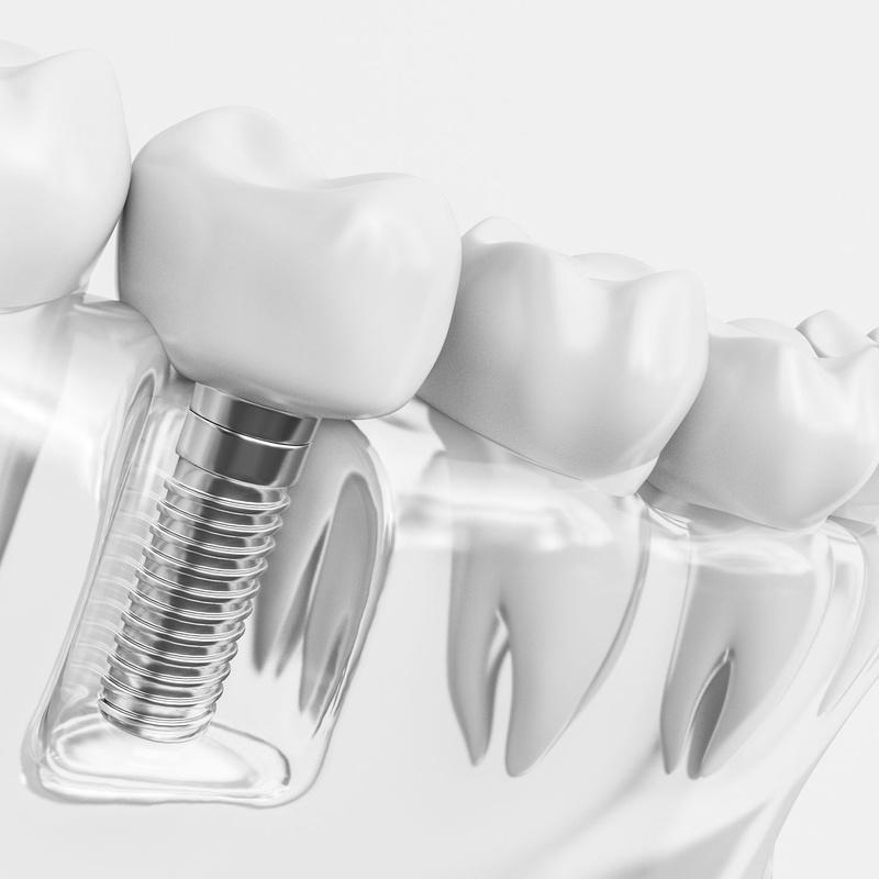 Implantología: Laboratorio Dental de Laboratorio de Prótesis Dental