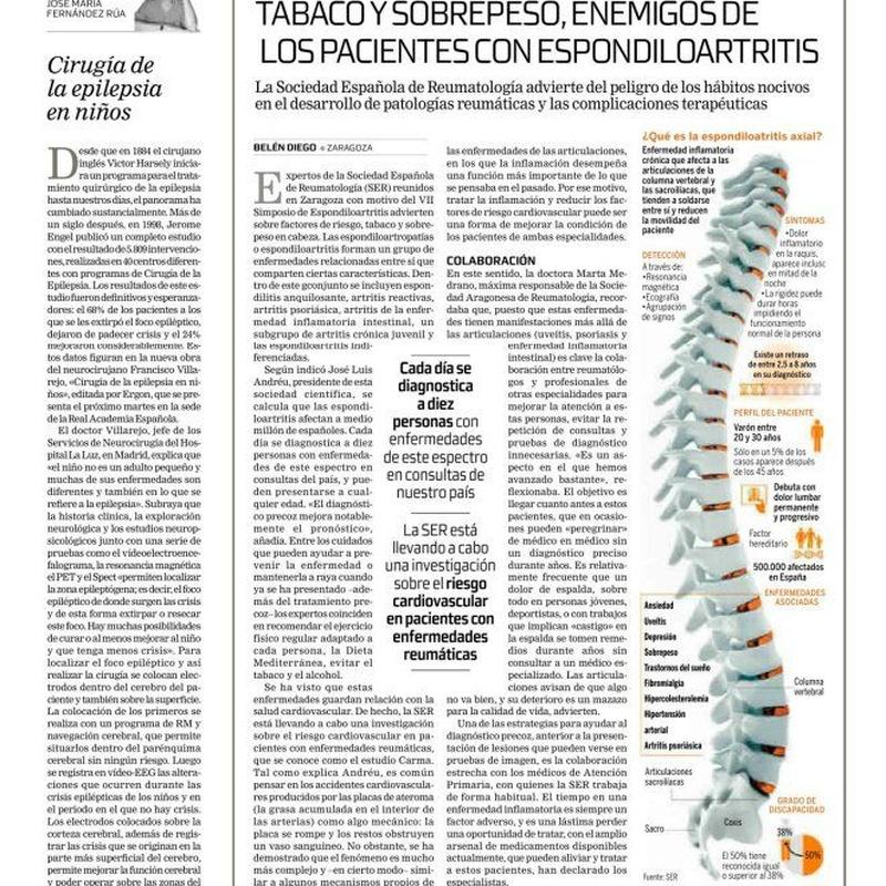Artículo periódico Tribuna: Cirugía de la epilepsia en niños: Especialidades y publicaciones de Doctor Villarejo