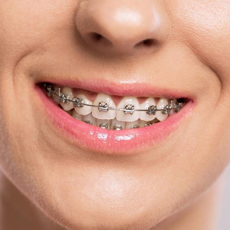 Brackets Metálicos: convencionales o autoligables: Tratamientos de Moncloa Clínica Dental