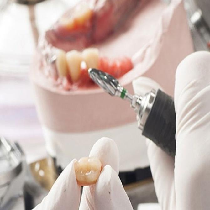 ¿Cómo se mantiene firme un implante dental?