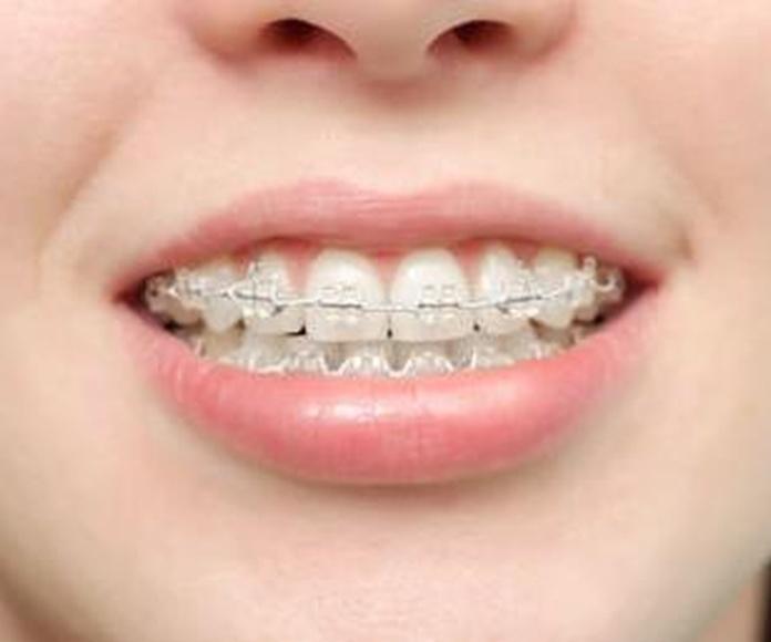 Ortodoncia: Tratamientos de Clínica Neardental