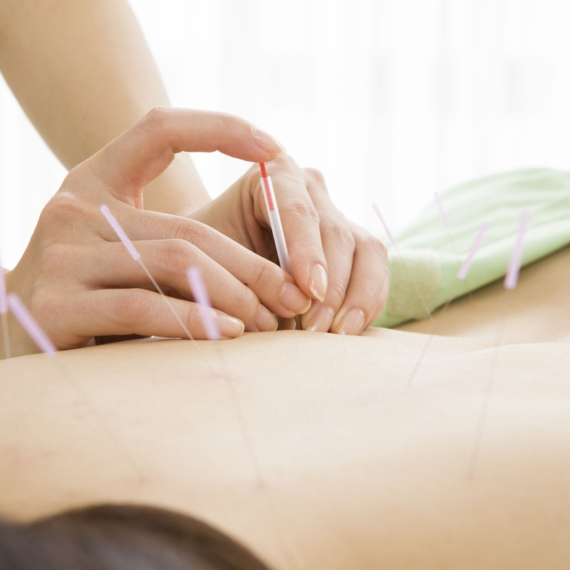 Acupuncture: Services de Fisioterapia Equipo 21