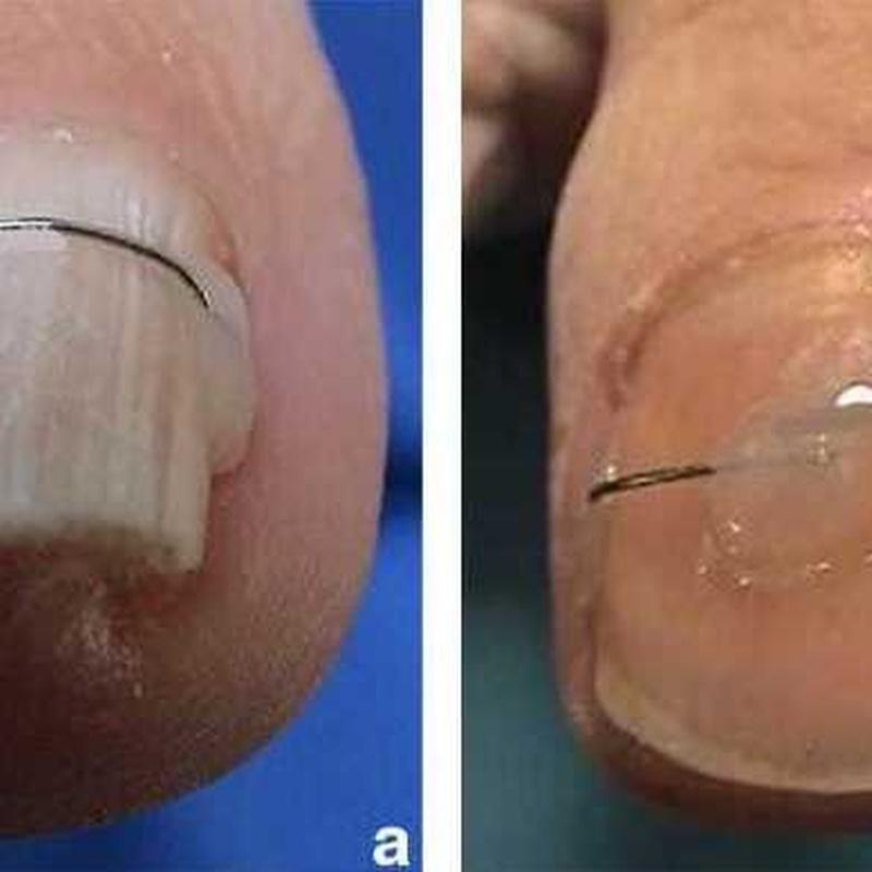 TRatamiento de Uñas clavadas mediante Ortinixia