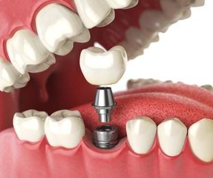 Por qué merecen la pena los implantes dentales