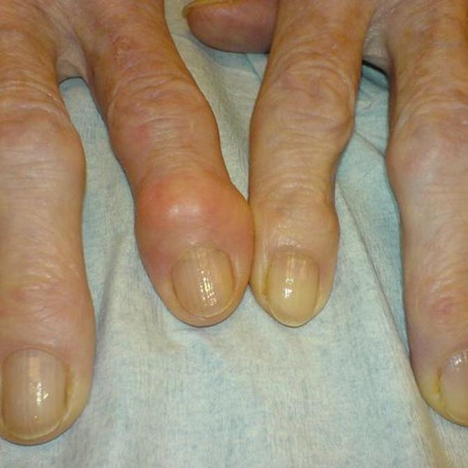 Los síntomas de las enfermedades reumáticas