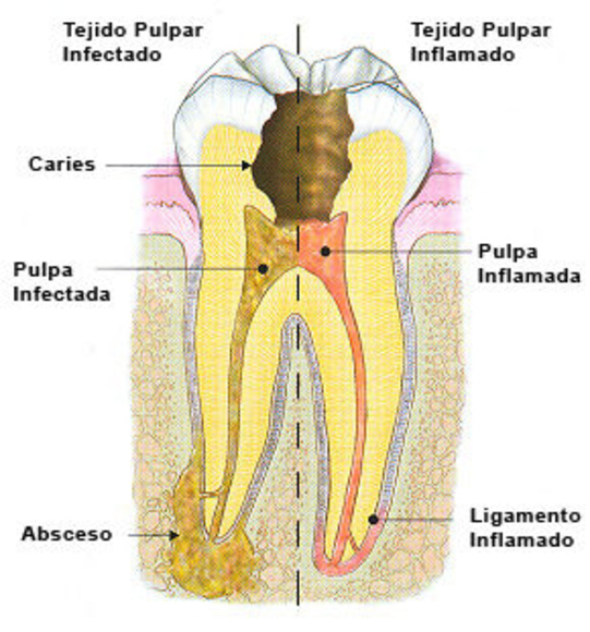 Endodoncia : Especialidades  de Centro Dental Unamuno }}