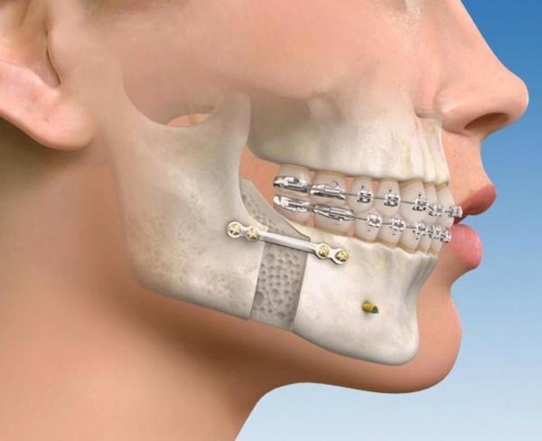Cirugía maxilofacial: Aiara Centro Dental de Aiara Centro Dental