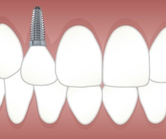 Como son las citas con Invisalign: Servicios de Clínica Dental Dr. Ignacio Belsué
