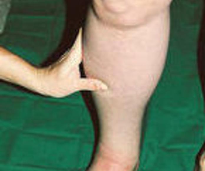 Piernas hinchadas. ¿afeccion venosa o linfedema?