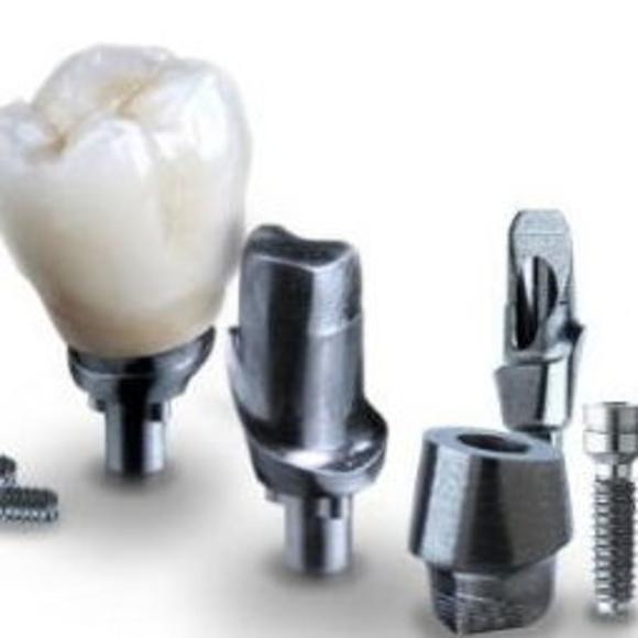 implantes orales