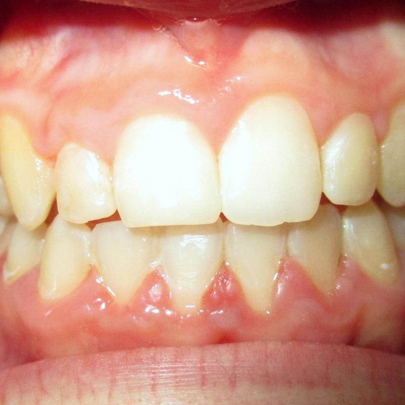 Después de la ortodoncia