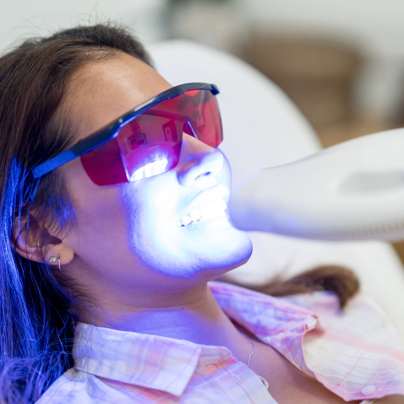 Blanqueamiento: Servicios de Dental Ollerías