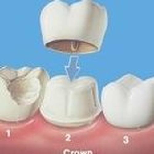 implantes dentales en El Sauzal