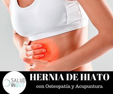 HERNIA DE HIATO con Osteopatía y Acupuntura