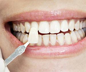 Clínica dental española / británica