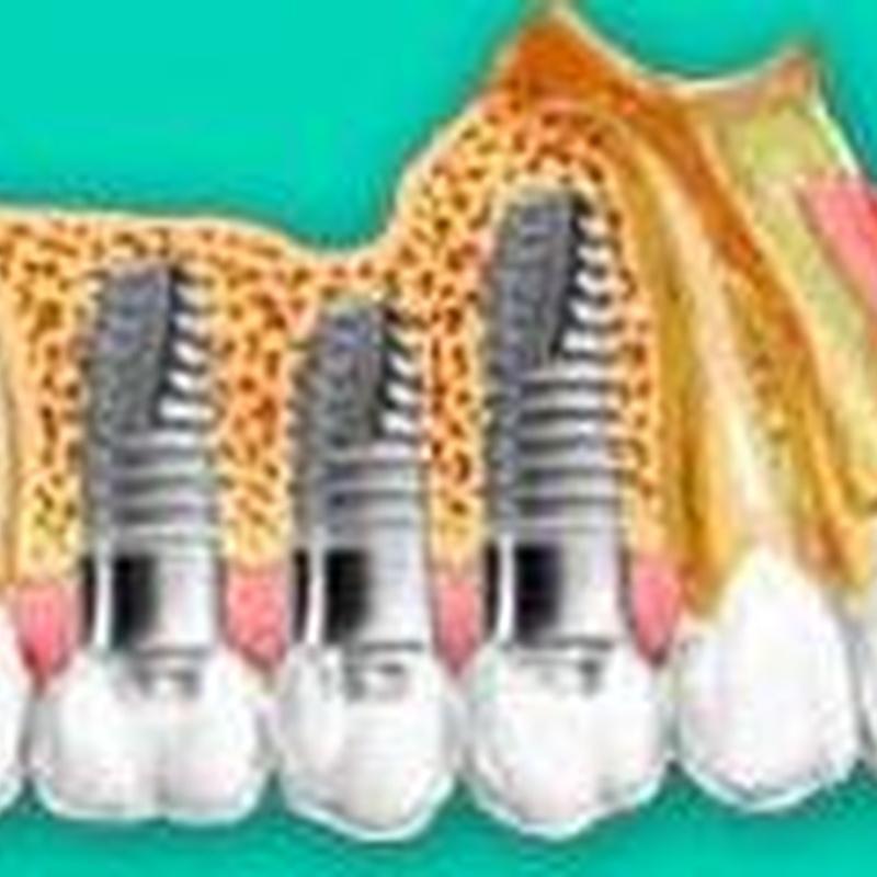 Implantes : Especialidades de Insadent - Centro Odontológico
