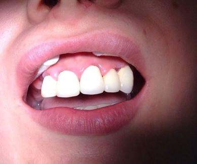 Importancia del ajuste de las prótesis dentales fijas