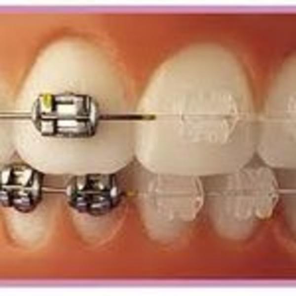 Ortodoncia infantil y adultos: Servicios de Smaltecanarias - Marisa Warcevitzky
