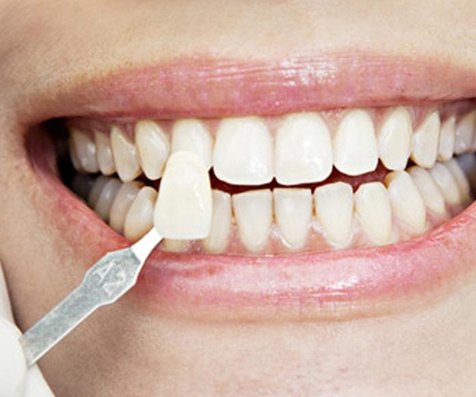 carillas dentales Ciudad Real