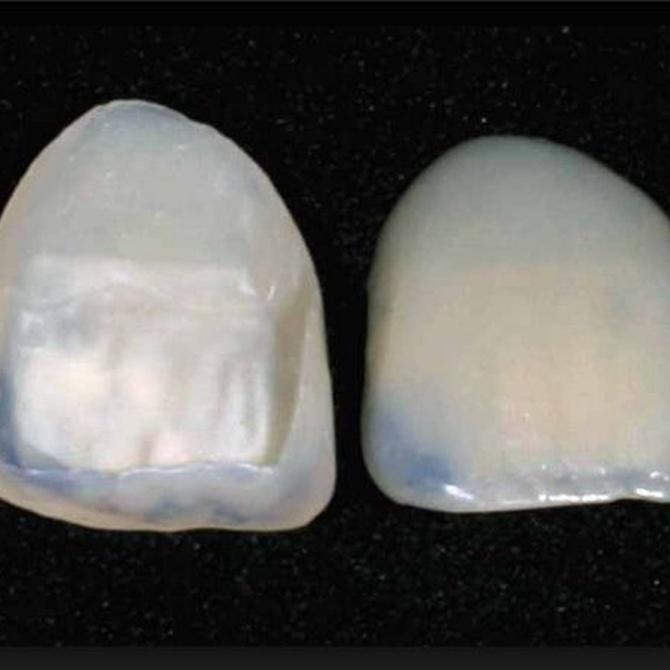 Ventajas de las carillas de porcelana