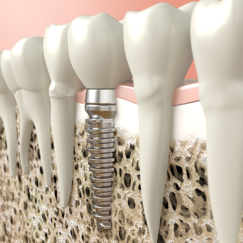 Implantes dentales: Tratamientos de Centro Médico Dental Capitol