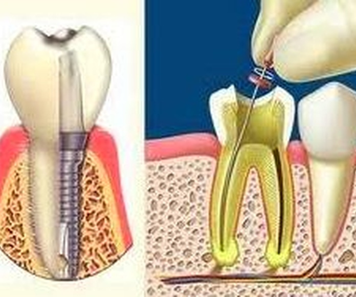 Implantes Dentales Vs. Endodoncias