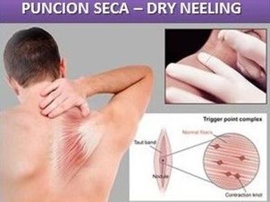 PUNCION SECA - DRY NEELING