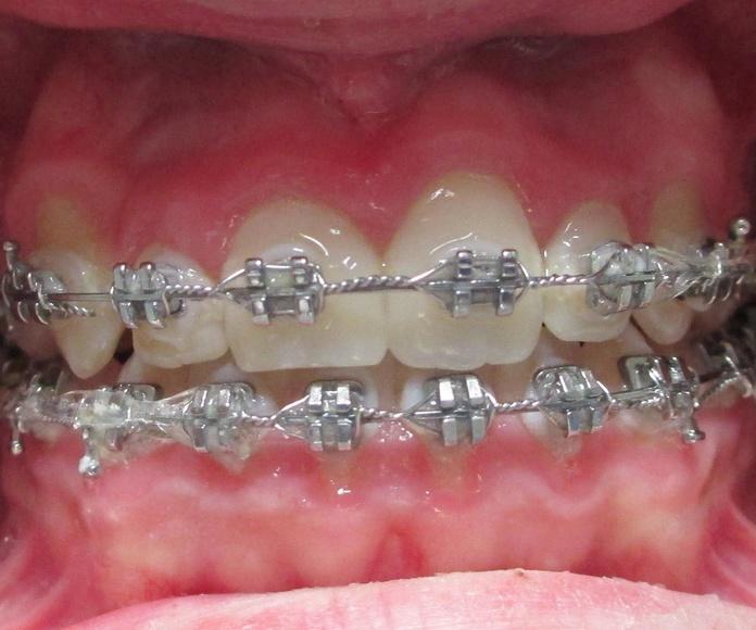 Ortodoncia: Catálogo de Clinica Dental Elisa Ravojc