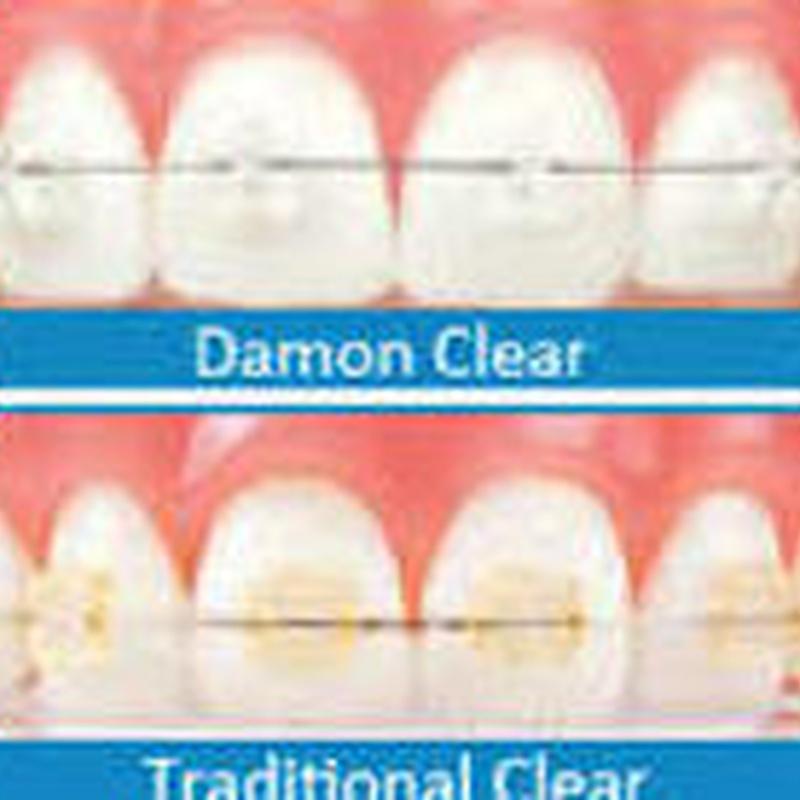 Ortodoncia: Tratamientos de Clínica Dental Miquel Mayordomo