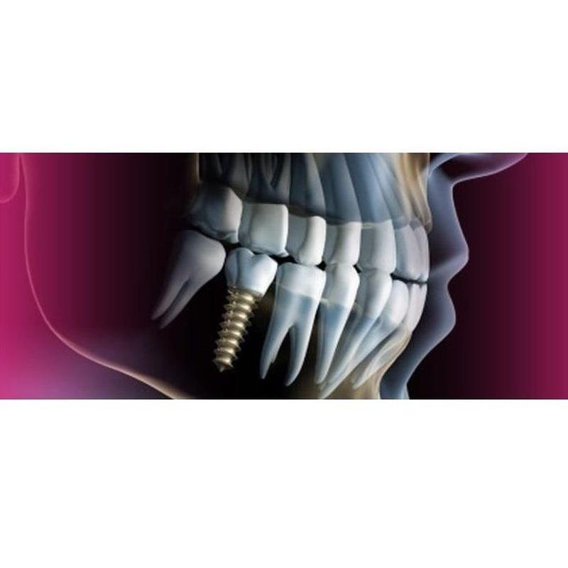 Guía quirúrgica: Tratamientos de Moncloa Clínica Dental