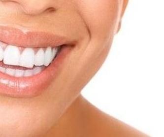 Implantes: Especialidades de Clínica Dental Martín