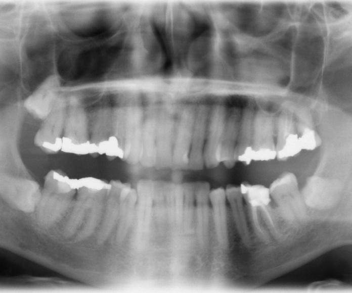 Radiografías: Tratamientos de Clínica Dental Palamadent