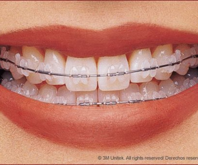 BRACKETS DE PORCELANA CLARITY 3M