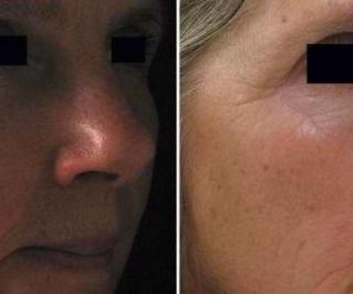 Enfermedades piel, cabello y uñas: Tratamientos de Centro Dermatológico Verónica Díaz
