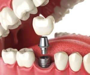 Implantología avanzada