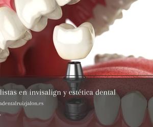 Ortodoncia invisalign en San Fernando | Clínica Dental Ruíz Jalón